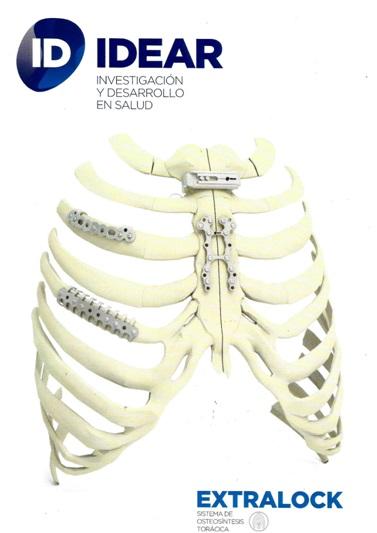 Osteosíntesis para reconstrucción de pared torácica