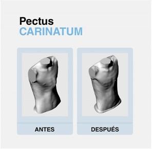 Pectus Carinatum Antes y después